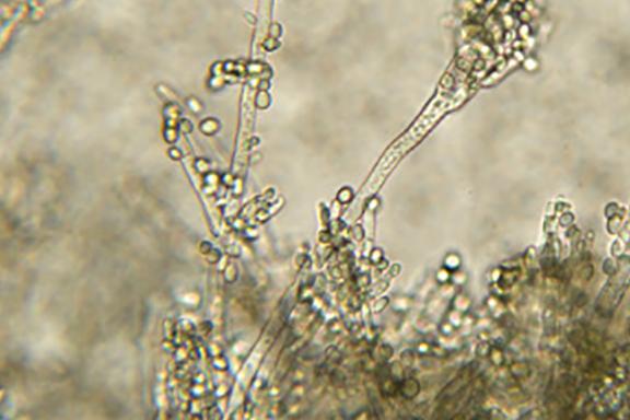 耳念珠菌!超级真菌在美国爆发60%致死