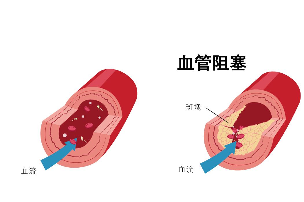 血管阻塞?7种营养成分帮你守护血管健康