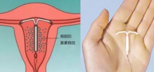 用曼月乐环会脸上长痘吗?有什么副作用?