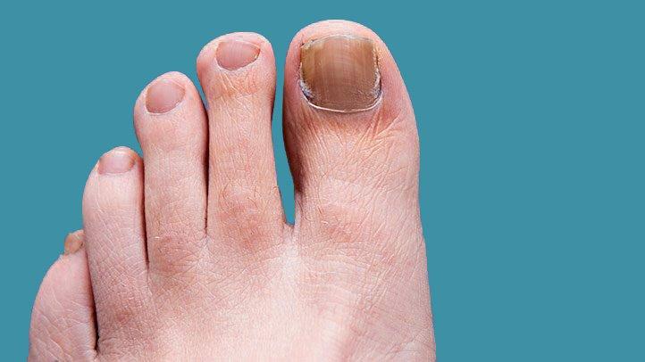 如何预防和治疗脚趾甲和足部真菌?