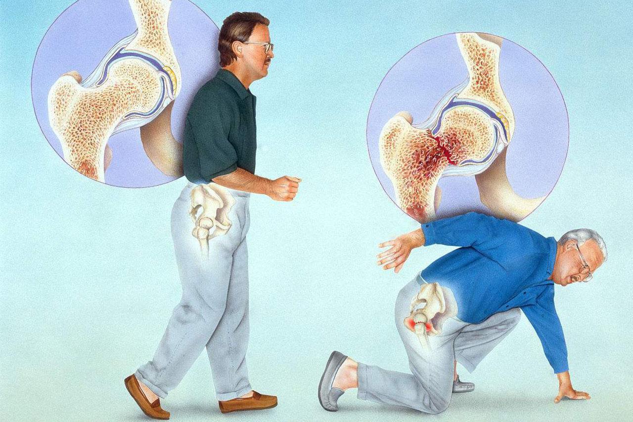 骨质疏松要早作预防!6招帮你巩固你的骨头!