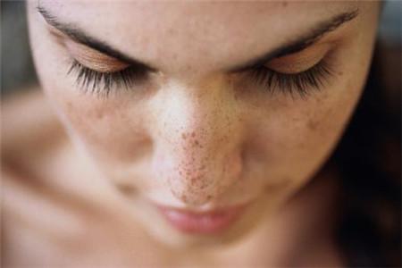 孕妇怎样轻松祛斑?三个技巧教你保护肌肤!