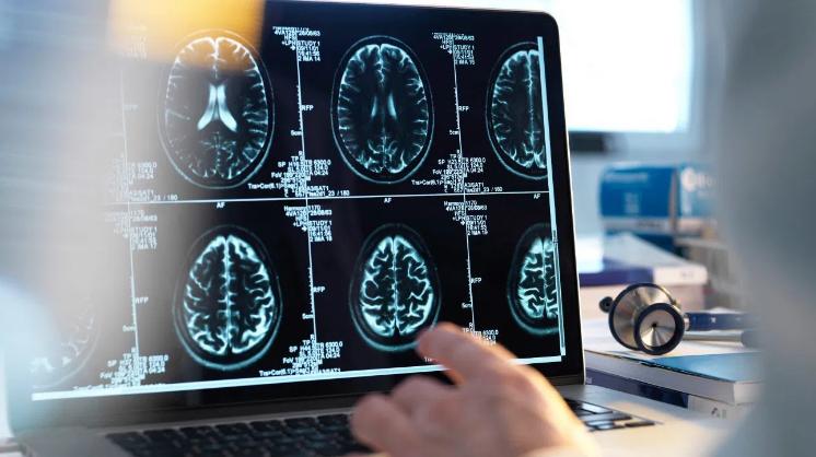 强化血压控制可以预防以后的大脑损伤