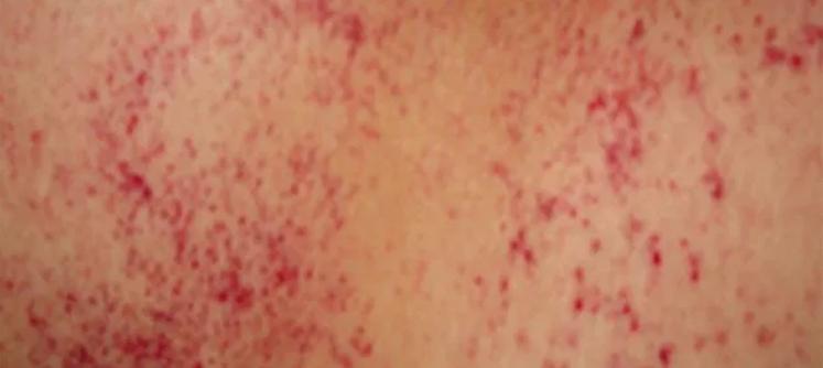 如何识别和治疗贫血性皮疹?